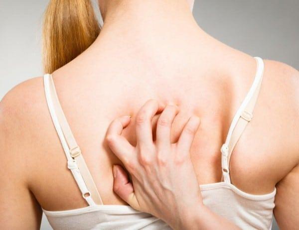 Шест прости навика, които предотвратяват появата на акне по тялото